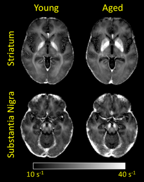 Colloquium: Assessing the impact of iron deposition on diffusion MRI signals